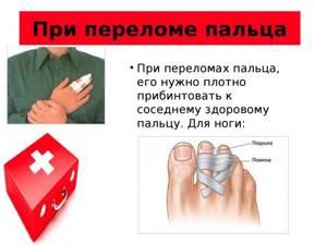 Перелом большого пальца ноги: симптомы, признаки, трещина