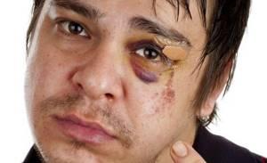 Травма глаза: лечение, в домашних условиях, капли, первая помощь