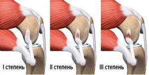 Растяжение мышц бедра: лечение в домашних условиях