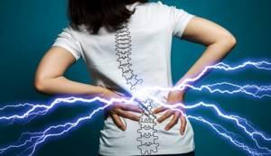 Хондропротекторы при остеохондрозе позвоночника: грыже поясничного отдела