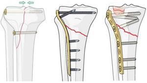 Перелом голени со смещением: операция, пластина, реабилитация