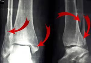 Удаление позиционного винта при переломе лодыжки: снятие