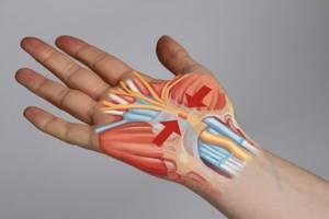 Немеют пальцы рук по ночам: причины и лечение, что делать