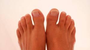 Водянистые пузырьки на ногах: появились и чешутся