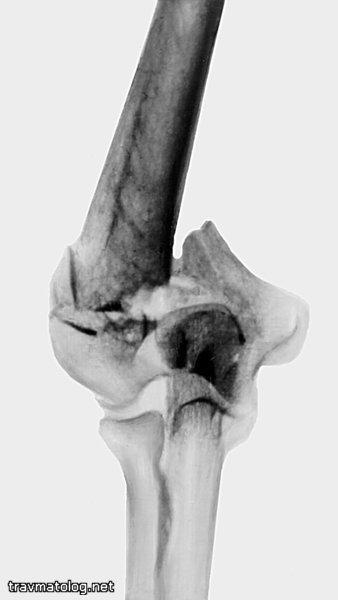 Перелом мыщелка плечевой кости: медиального, закрытый