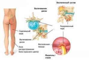 Как лечить защемление седалищного нерва: симптомы
