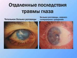 Повреждение роговицы глаза: лечение, последствия, отслоение