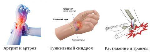 Ортез на лучезапястный сустав: полужесткая разновидность, мягкий