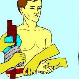 Первая помощь при переломе голени: открытом, ПМП