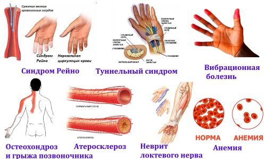 Немеет левая рука кисть: причины и лечение, что делать в домашних условиях
