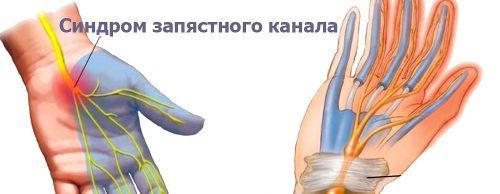 Немеет средний палец на левой руке: причины, от чего