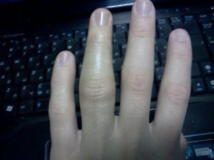Посинел средний палец правой руки. Посинел палец на руке, что делать? Механизм и причины возникновения ушибов