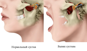Вывих челюсти: что делать, при зевании, лечение