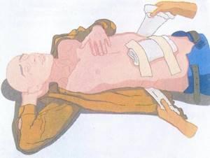 Ножевое ранение в живот: сердце, шею, первая помощь при ударе