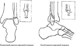 Как долго болит нога после перелома лодыжки: сколько, когда можно