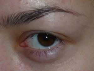 Распух глаз и болит