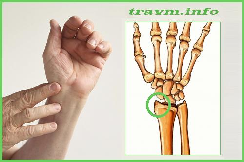 Перелом шиловидного отростка лучевой кости: без смещения