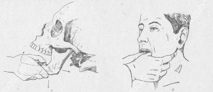 Как понять что вывихнул челюсть