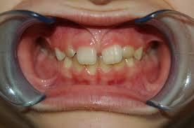 Перелом челюсти: последствия, со смещением, открытый