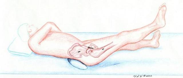 Вертельный перелом бедренной кости: большого, малого, вертела