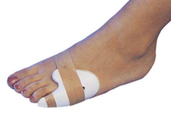 Перелом мизинца на ноге: что делать, сломан, если сломал