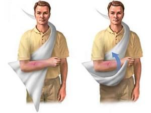 Повязка на плечевой сустав: фиксирующая на плечо