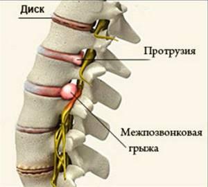 Острая боль в пояснице: резкая, режущая, причины и лечение боли