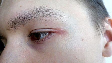 Болит уголок глаза: внешний, при моргании, у переносицы