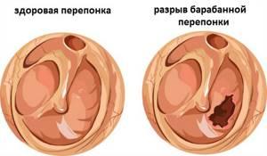 Разрыв барабанной перепонки: симптомы и признаки, последствия