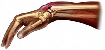 Перелом лучевой кости без смещения: сколько носить гипс
