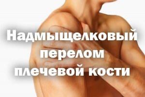 Надмыщелковый перелом плечевой кости: у детей