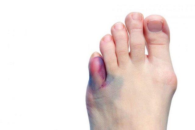 Опухоль на ноге между пальцами