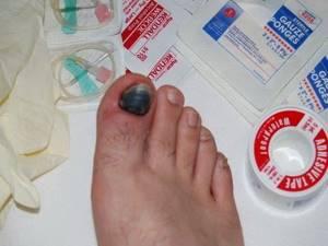 Ушиб пальца на ноге: симптомы, что делать в домашних условиях