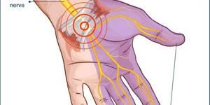 Болит безымянный палец на правой руке: почему боль в суставе