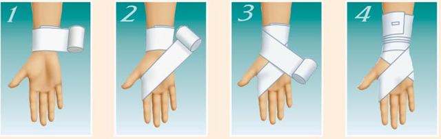 Отек руки после перелома лучевой кости после снятия гипса