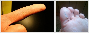 Как вытащить занозу из пальца: достать, если она глубоко