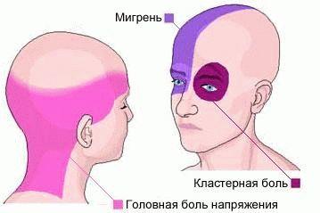 Сильно болит голова таблетки не помогают: что делать, постоянно