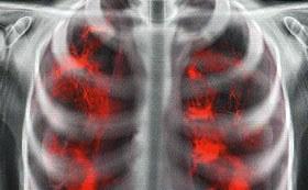 Артроскопия плечевого сустава: как правильно, ЛФК