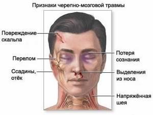 Открытая и закрытая черепно-мозговая травма: последствия