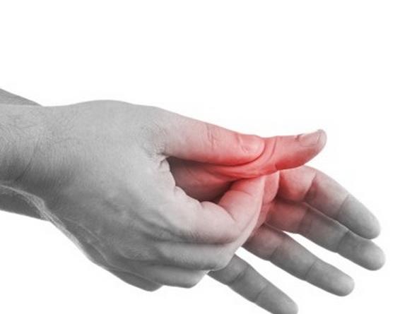 Вывих пальца на руке: что делать, лечение в домашних условиях