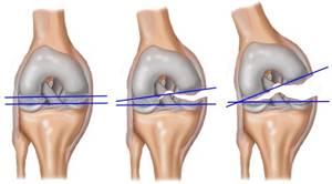 Травма колена, растяжение связок: лечение, что делать