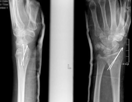 Перелом дистального метаэпифиза лучевой кости: со смещением