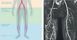 Немеет нога от бедра до ступни: причины, почему онемела
