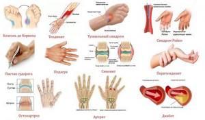 Болят кисти рук: причины, ноющая боль, лечение, что делать