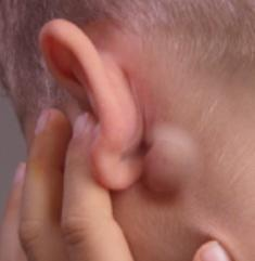 Болит правая сторона головы и отдает в ухо: почему