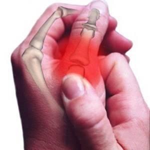 Как лечить ушиб пальца на руке: чем лечить, лечение