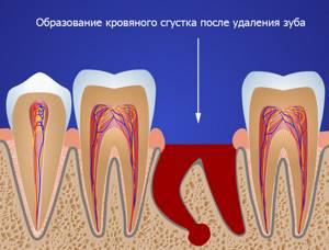 После удаления зуба болит десна: что делать, как долго, опухла