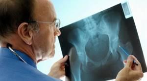 Чрезвертельный перелом бедренной кости: со смещением, лечение