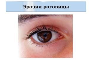 Болит глаз как будто что то попало но ничего нет: слезится