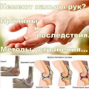 Немеет указательный палец левой руки: причины, что делать